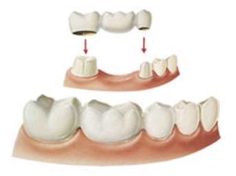 Prosthodontics-2