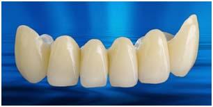 Prosthodontics-3