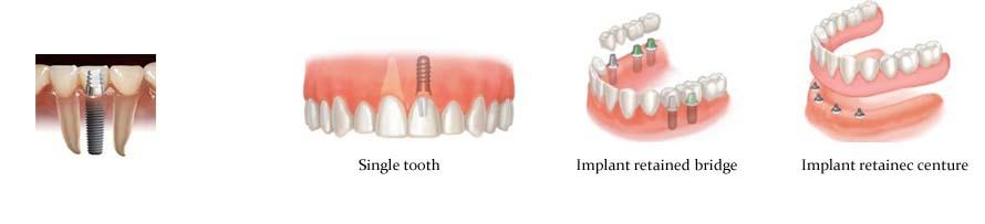 implantst